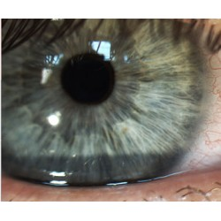 Slit Lamp Imaging